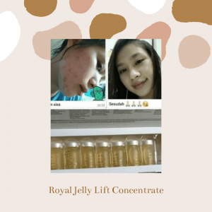 testimoni Jafra Royal Jelly serum